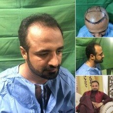Hair Transpalnt In Lahore